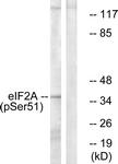 A7066-1 - EIF2A / EIF2S1