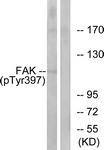 A7081-1 - FAK1 / PTK2