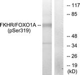 A7086-1 - FOXO1A