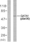 A7093-1 - GATA1