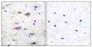 A7096-1 - Glutamate receptor 2 / GLUR2
