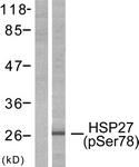 A7111-1 - HSPB1 / HSP27