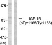 A7115-1 - CD221 / IGF1R