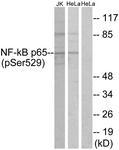 A7162-1 - RELA / NF-kB p65