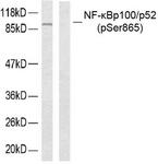 A7164-1 - NFKB2 / NF-kappa-B p100/p52