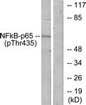 A7173-1 - RELA / NF-kB p65