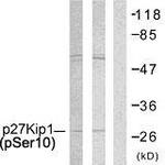 A7176-1 - CDKN1B / KIP1