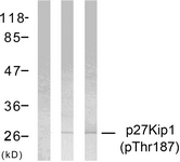 A7177-1 - CDKN1B / KIP1