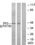A7187-1 - TP53 / p53