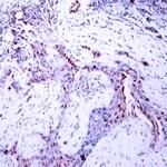 A7200-1 - Progesterone receptor