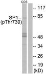 A7218-1 - SP1 / TSFP1