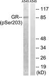 A8038-1 - Glucocorticoid receptor