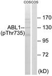 A8074-1 - ABL1