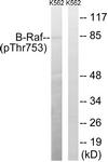 A8305-1 - B-Raf proto-oncogene