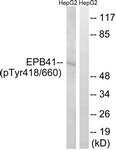 A8341-1 - EPB41 / Protein 4.1