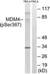 A8369-1 - MDM4