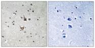 A8404-1 - Presenilin-1
