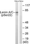 A8464-1 - Lamin-A/C (LMNA)