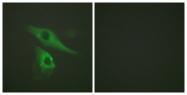 B0017-1 - Cytokeratin 8