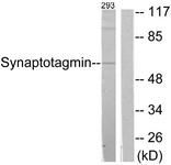 B0032-1 - Synaptotagmin-1