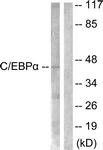 B0056-1 - CEBPA