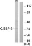 B0057-1 - CEBPB