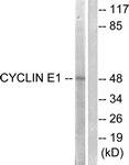 B0069-1 - Cyclin E1