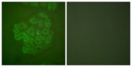 B0073-1 - Glucocorticoid receptor