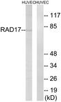 B0085-1 - RAD17