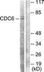 B0413-1 - CDC6