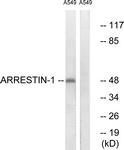 B0455-1 - Arrestin beta-1 / ARRB1