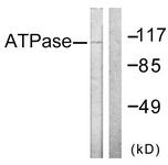 B0458-1 - ATP1A1