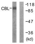 B0466-1 - CBL / RNF55