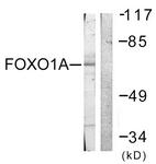 B0484-1 - FOXO1A