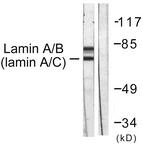 B0503-1 - Lamin-A/C (LMNA)