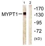 B0517-1 - PPP1R12A / MYPT1