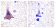 B0518-1 - PPP1R12A / MYPT1