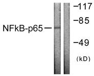 B0525-1 - RELA / NF-kB p65