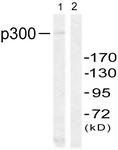 B0528-1 - EP300 / P300