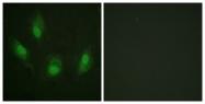 B0530-1 - TP53 / p53