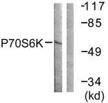 B0531-1 - RPS6KB1 / STK14A