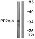 B0555-1 - PPP2CA
