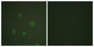 B0559-1 - Progesterone receptor