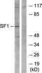 B0572-1 - Splicing factor 1 (SF1)