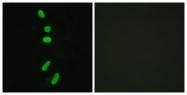 B0572-1 - Splicing factor 1 (SF1)
