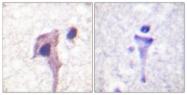 B0581-1 - Synapsin-1
