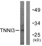 B0588-1 - Cardiac Troponin I