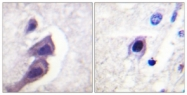 B0591-1 - Tuberin / TSC2