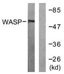 B0597-1 - WAS / IMD2