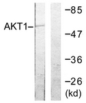 B0610-1 - AKT1 / PKB